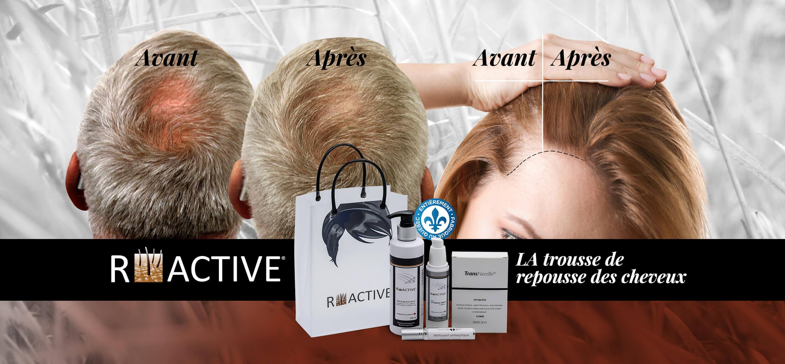 repousse-cheveux-page-accueil